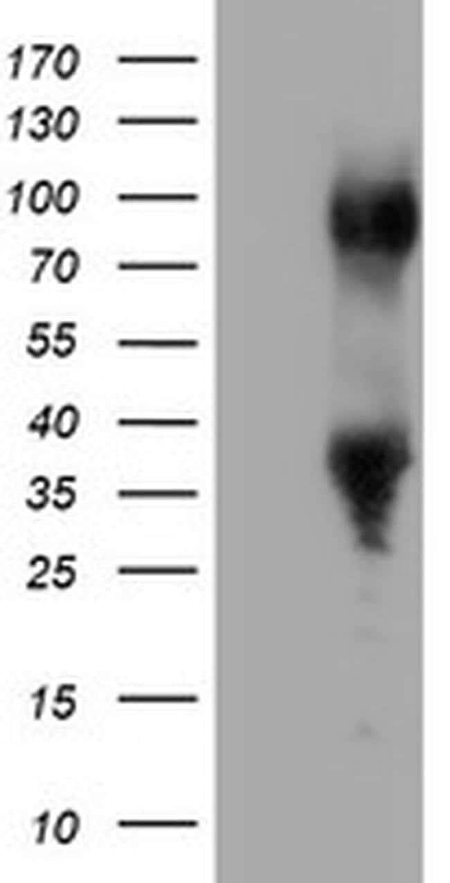 ERCC1 Mouse anti-Human, Clone: OTI3B1, liquid, TrueMAB  100 µL; Unconjugated