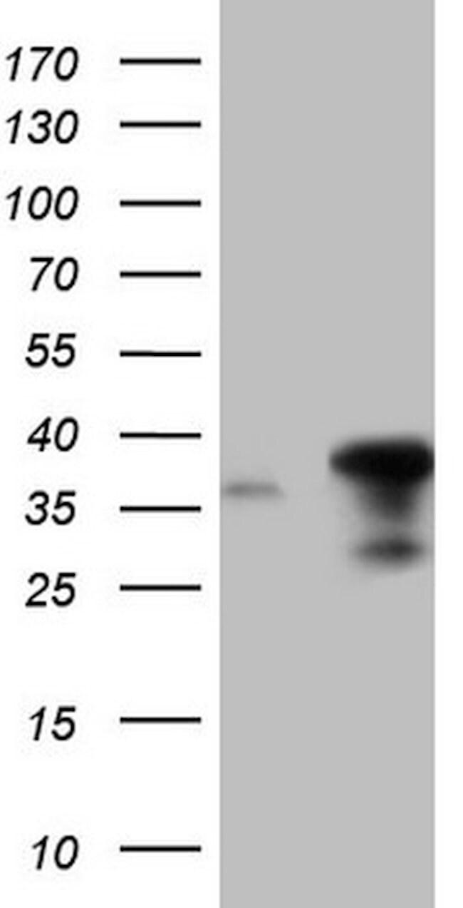 ERCC1 Mouse anti-Human, Clone: OTI6H7, lyophilized, TrueMAB  100 µg;