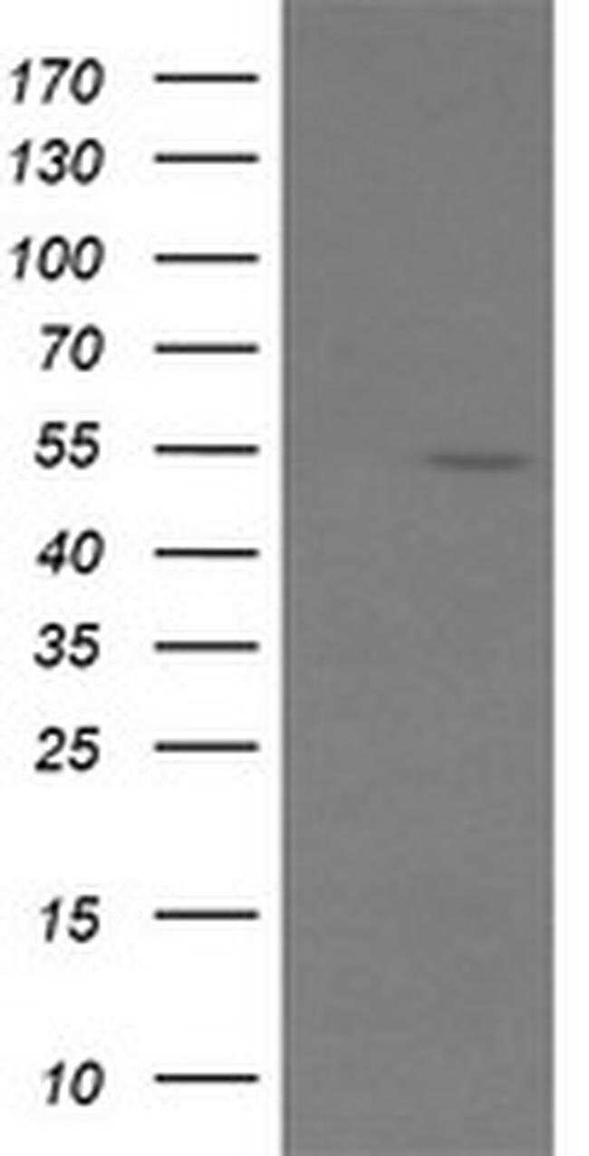 ERG Mouse anti-Human, Clone: OTI4H7, liquid, TrueMAB  30 µL; Unconjugated
