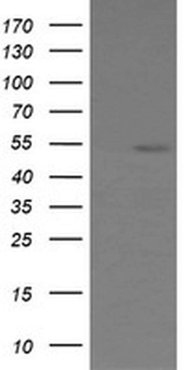 ERG Mouse anti-Human, Clone: OTI6A4, liquid, TrueMAB  100 µL; Unconjugated