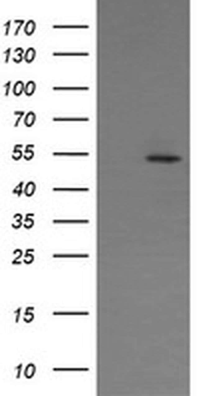 ERG Mouse anti-Human, Mouse, Clone: OTI5D10, liquid, TrueMAB  100 µL;
