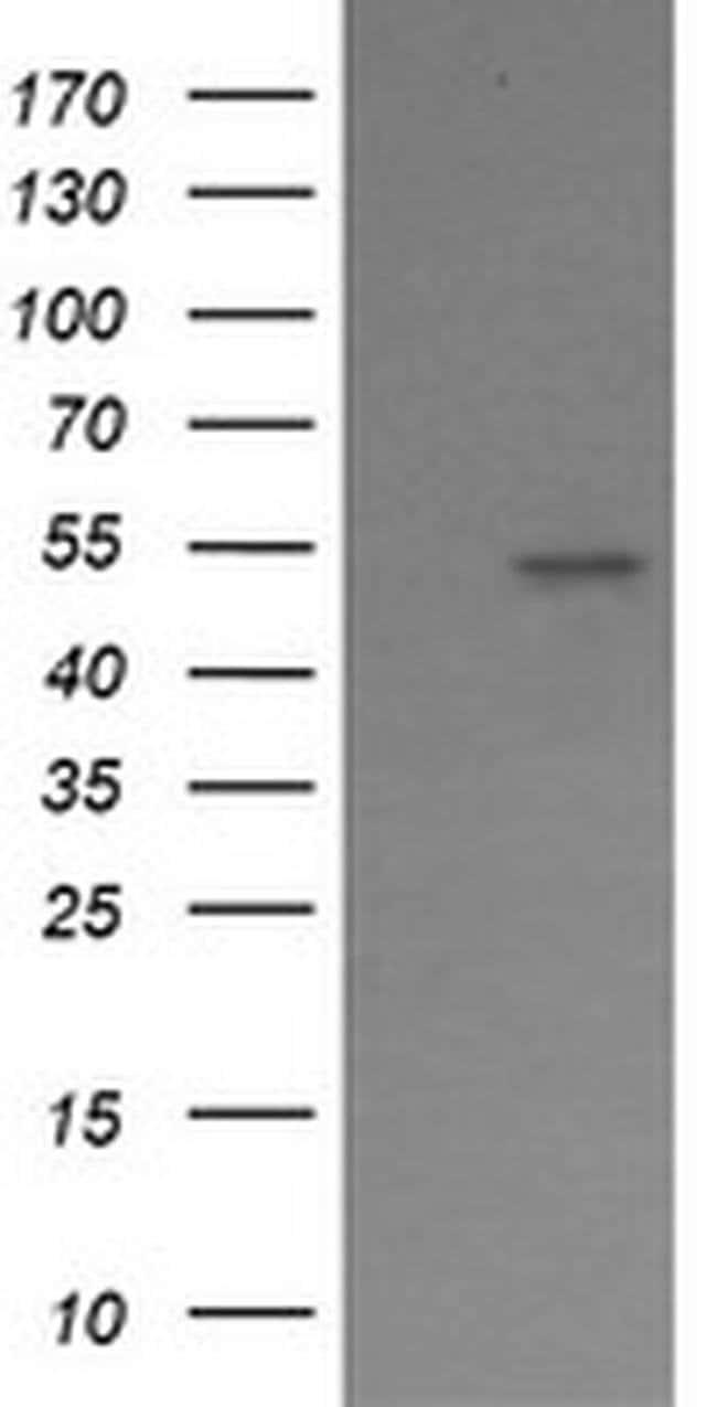 ERG Mouse anti-Human, Clone: OTI4G10, liquid, TrueMAB  100 µL; Unconjugated