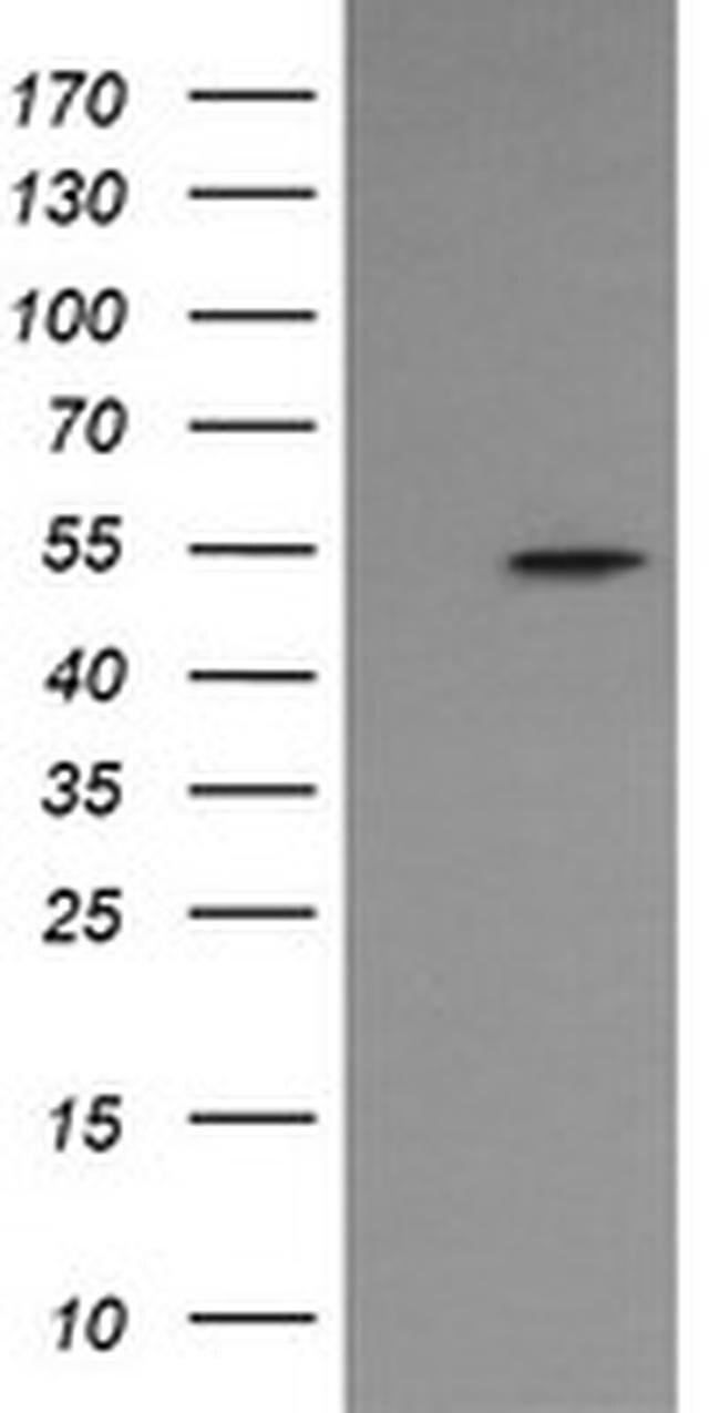 ERG Mouse anti-Human, Clone: OTI2G8, liquid, TrueMAB  100 µL; Unconjugated