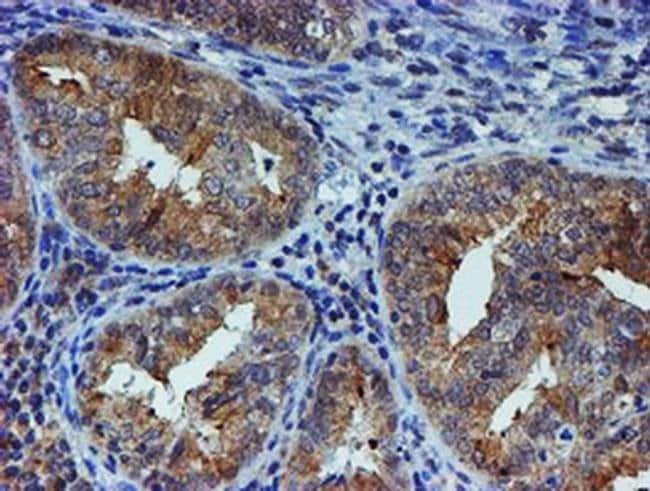 ESR1 Mouse anti-Human, Clone: OTI1B1, liquid, TrueMAB  100 µL; Unconjugated