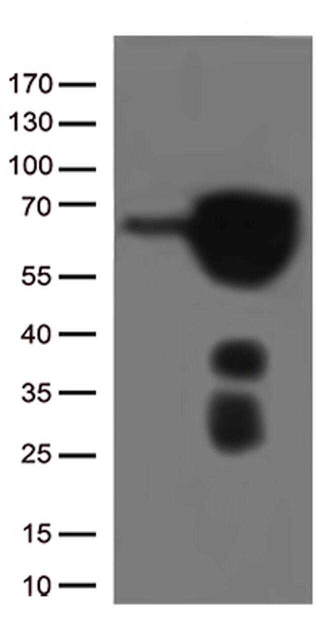 ESR1 Mouse anti-Canine, Human, Mouse, Clone: OTI3G2, lyophilized, TrueMAB