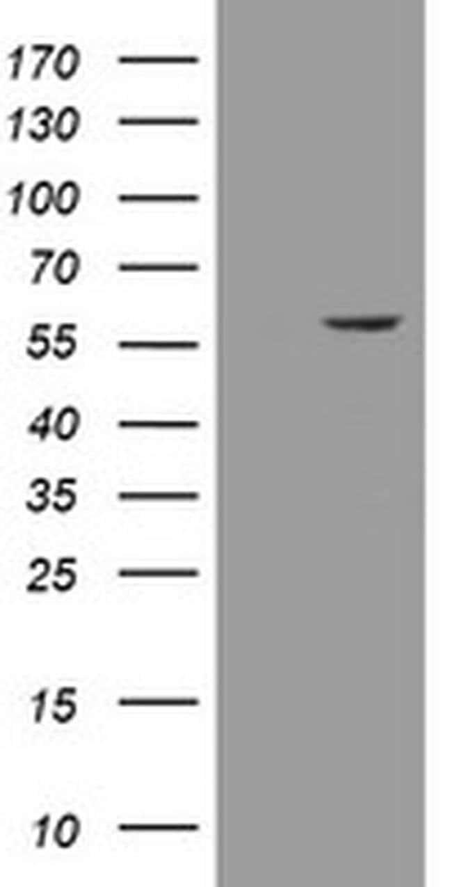 ESRRG Mouse anti-Human, Clone: OTI5G8, liquid, TrueMAB  100 µL; Unconjugated