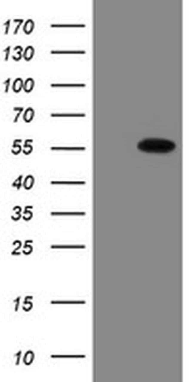 ESRRG Mouse anti-Human, Clone: OTI1E5, liquid, TrueMAB  30 µL; Unconjugated