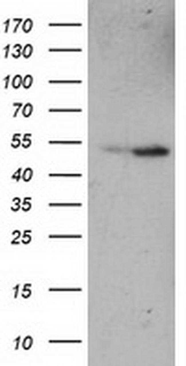 ETF1 Mouse anti-Human, Clone: OTI2E3, liquid, TrueMAB  100 µL; Unconjugated