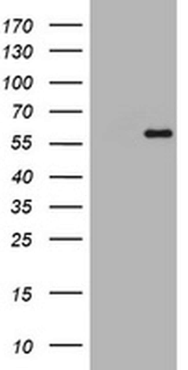 ETS2 Mouse anti-Human, Clone: OTI3E10, liquid, TrueMAB  100 µL; Unconjugated