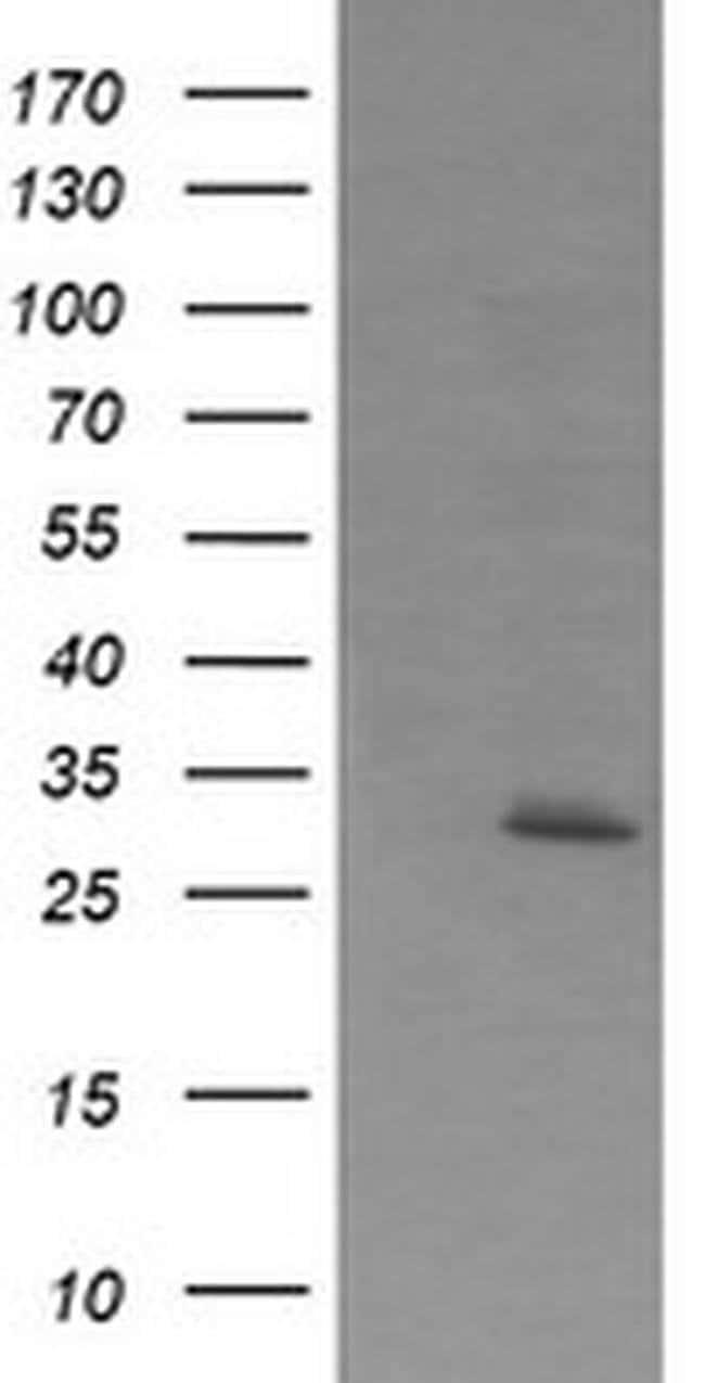 EXOSC7 Mouse anti-Human, Clone: OTI1E8, liquid, TrueMAB  100 µL; Unconjugated