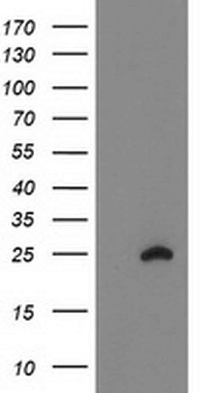 FAM119A Mouse anti-Human, Clone: OTI2D6, liquid, TrueMAB  100 µL;