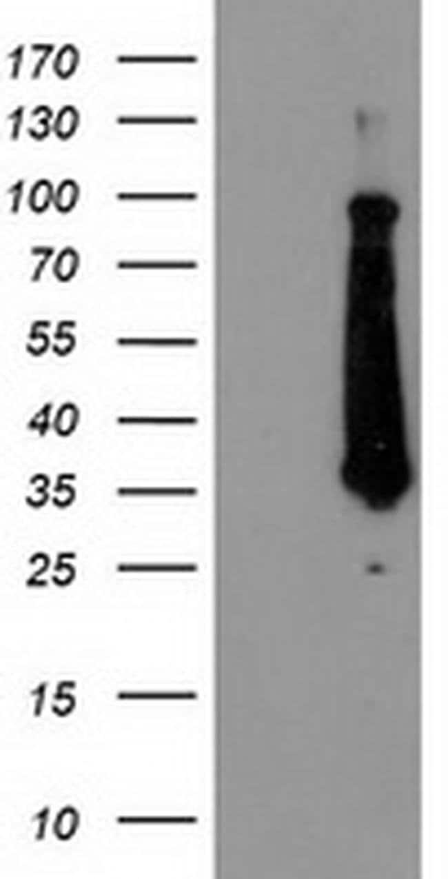 FAM119A Mouse anti-Human, Clone: OTI2G7, liquid, TrueMAB  100 µL;