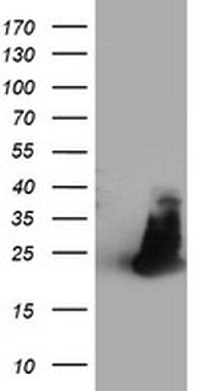 FAM119A Mouse anti-Human, Clone: OTI2D3, liquid, TrueMAB  100 µL;