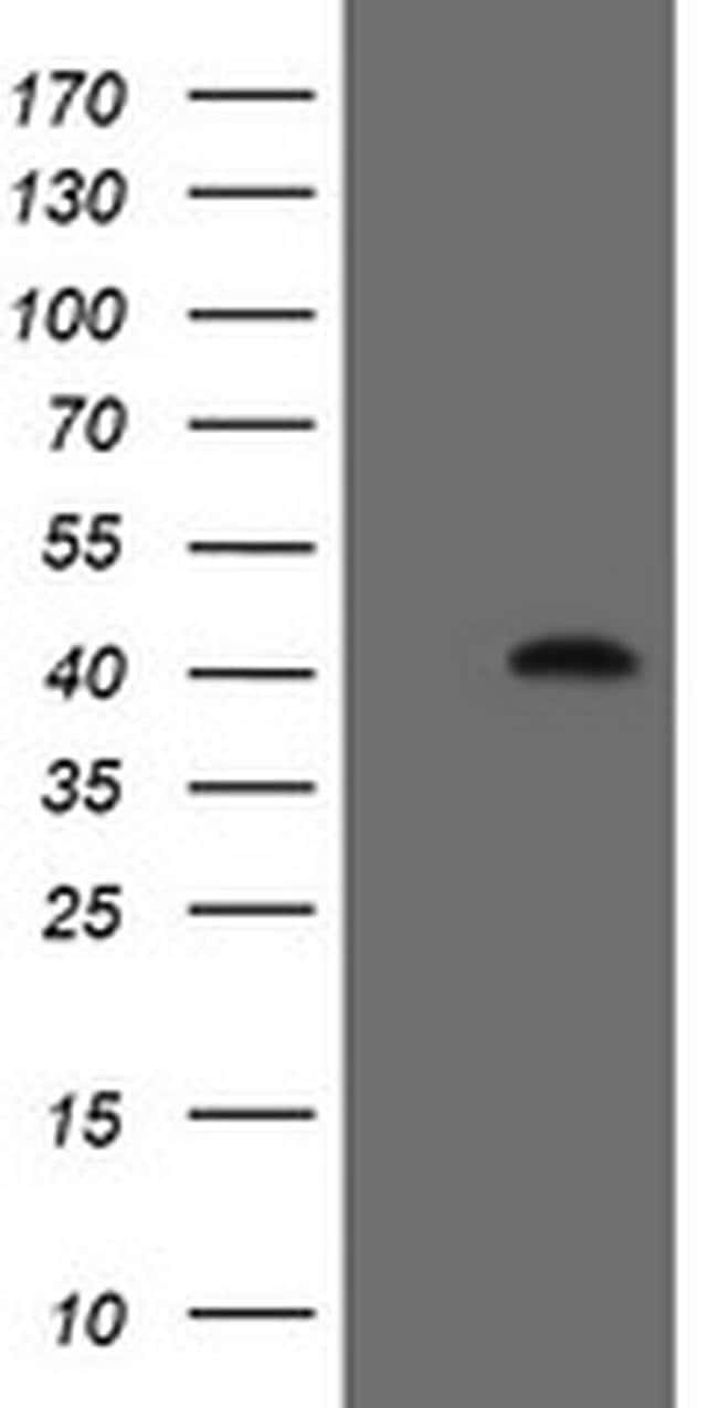 FAM164A Mouse anti-Human, Clone: OTI2E1, liquid, TrueMAB  100 µL;