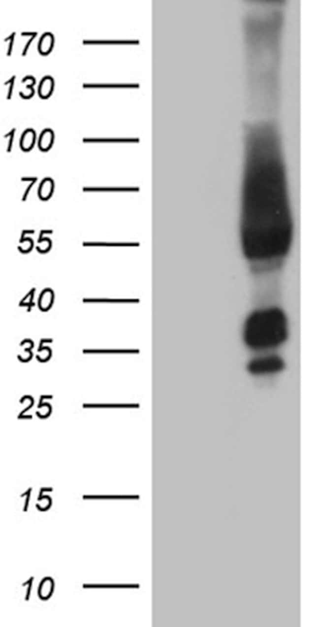 FAM170A Mouse anti-Human, Clone: OTI4C6, lyophilized, TrueMAB  100 µg;