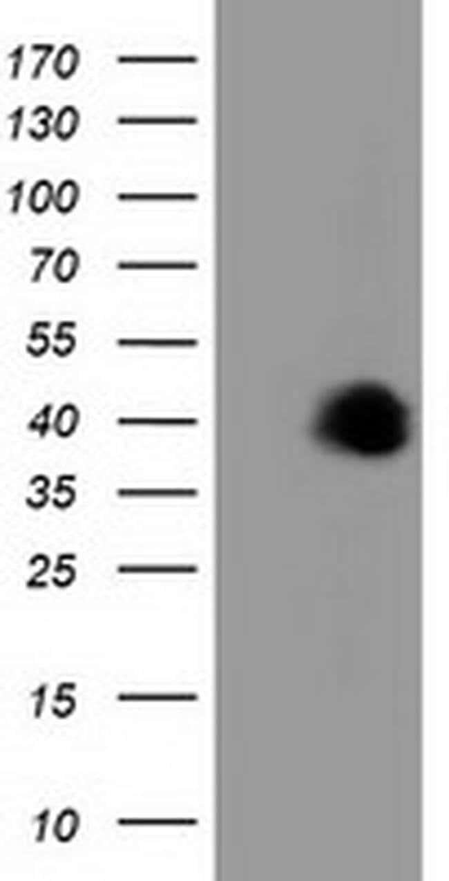 FAM84B Mouse anti-Human, Clone: OTI5B5, liquid, TrueMAB  100 µL; Unconjugated