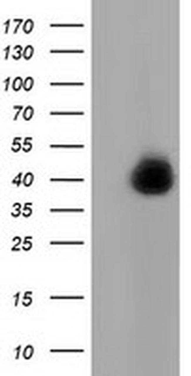 FAM84B Mouse anti-Human, Clone: OTI2E9, liquid, TrueMAB  100 µL; Unconjugated