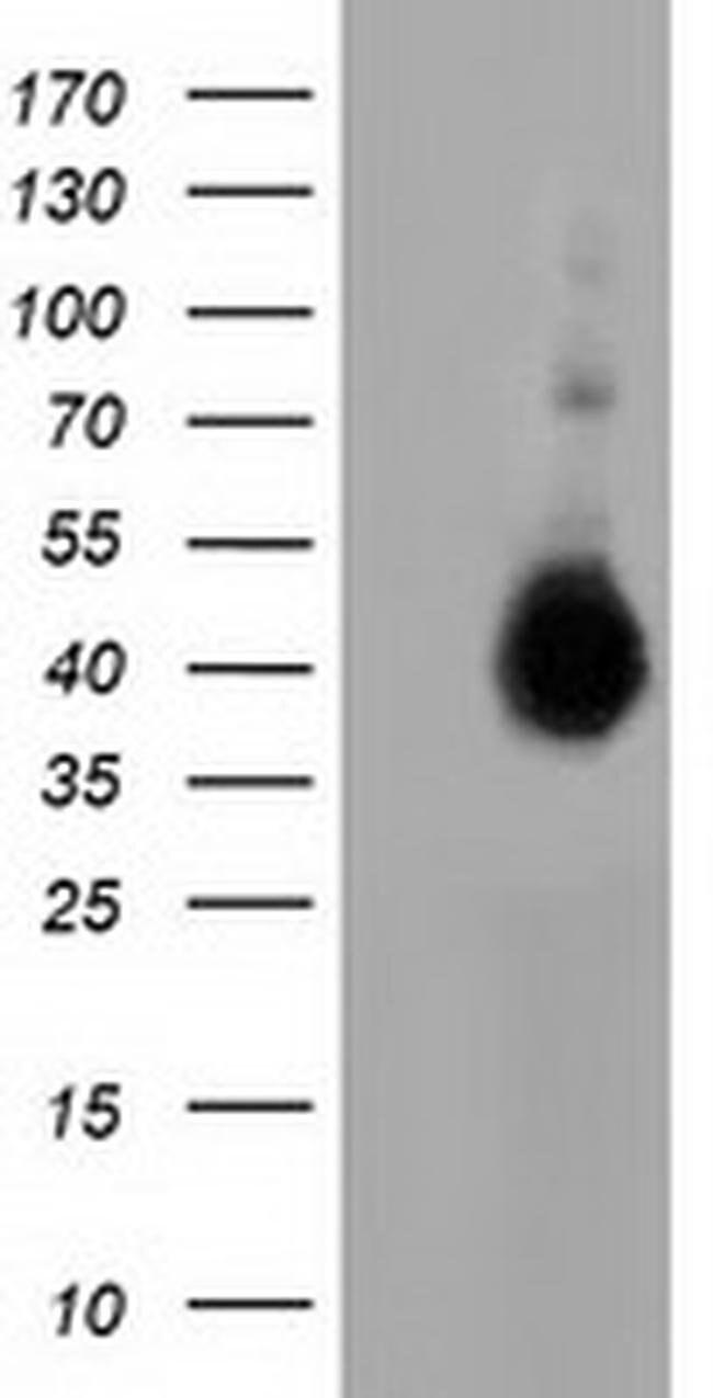 FAM84B Mouse anti-Human, Clone: OTI5D8, liquid, TrueMAB  100 µL; Unconjugated