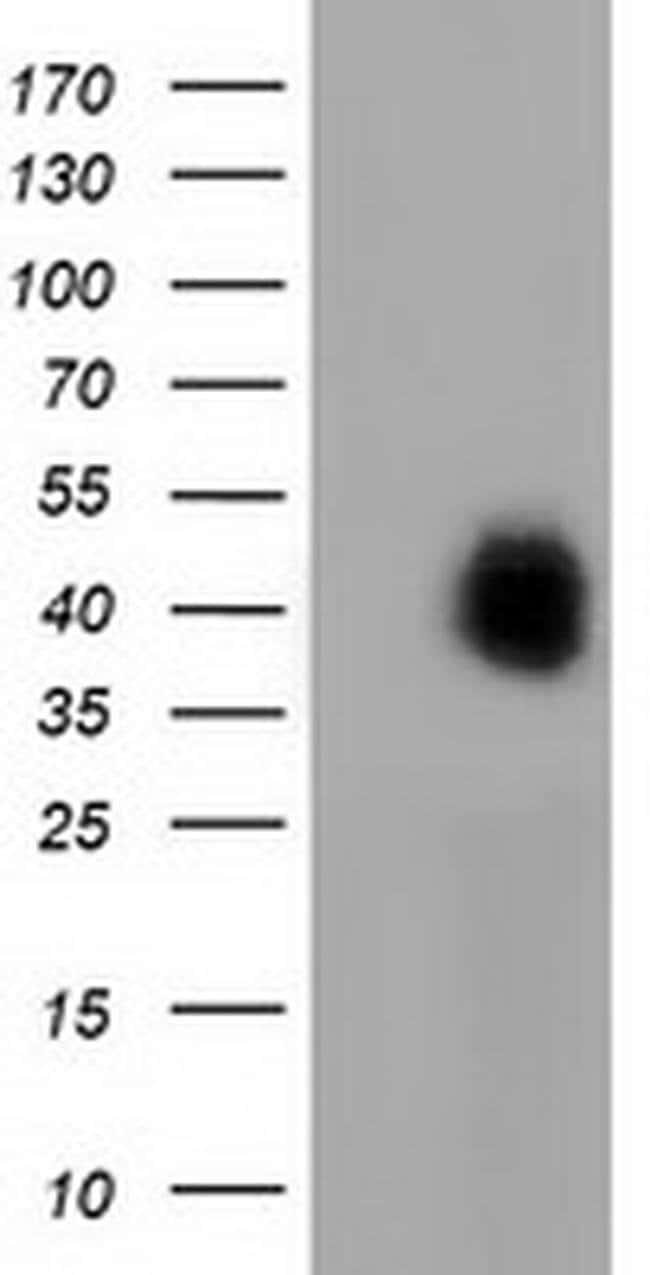 FAM84B Mouse anti-Human, Clone: OTI5A7, liquid, TrueMAB  100 µL; Unconjugated