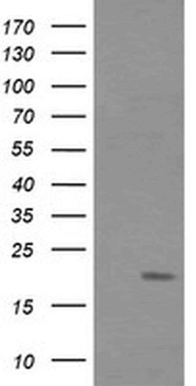 FATE1 Mouse anti-Human, Clone: OTI6A11, liquid, TrueMAB  30 µL; Unconjugated