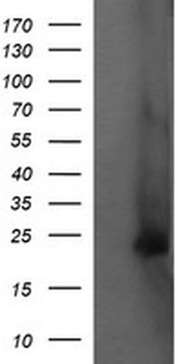 FATE1 Mouse anti-Human, Clone: OTI7A8, liquid, TrueMAB  100 µL; Unconjugated