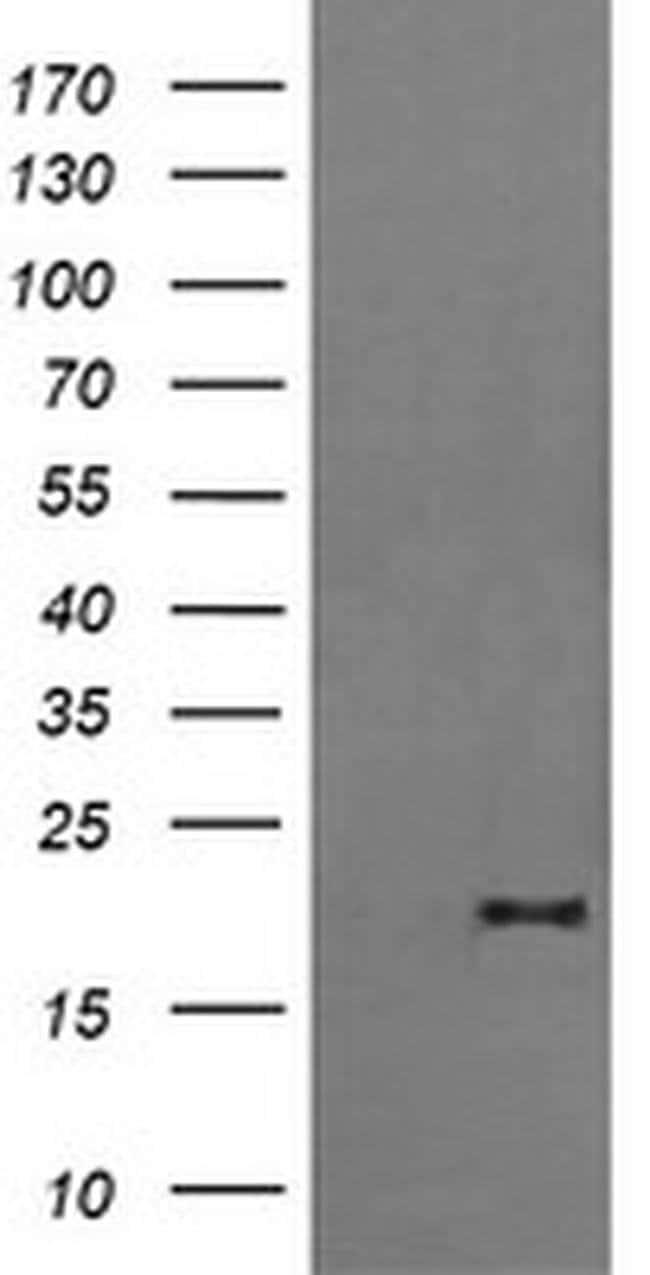 FATE1 Mouse anti-Human, Clone: OTI7B12, liquid, TrueMAB  100 µL; Unconjugated