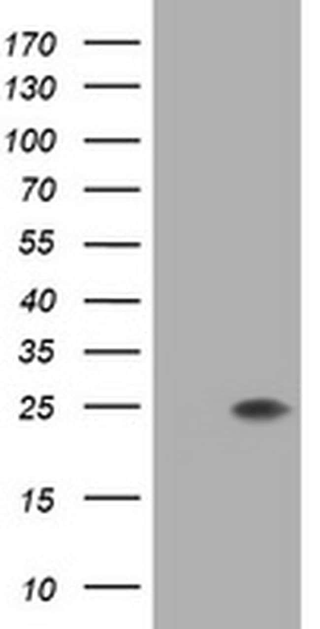 FATE1 Mouse anti-Human, Clone: OTI6G10, liquid, TrueMAB  100 µL; Unconjugated
