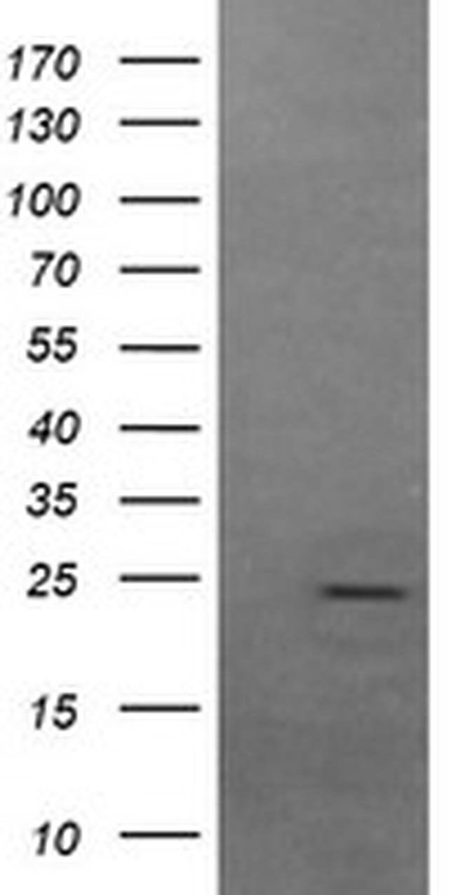 FATE1 Mouse anti-Human, Clone: OTI7B5, liquid, TrueMAB  100 µL; Unconjugated
