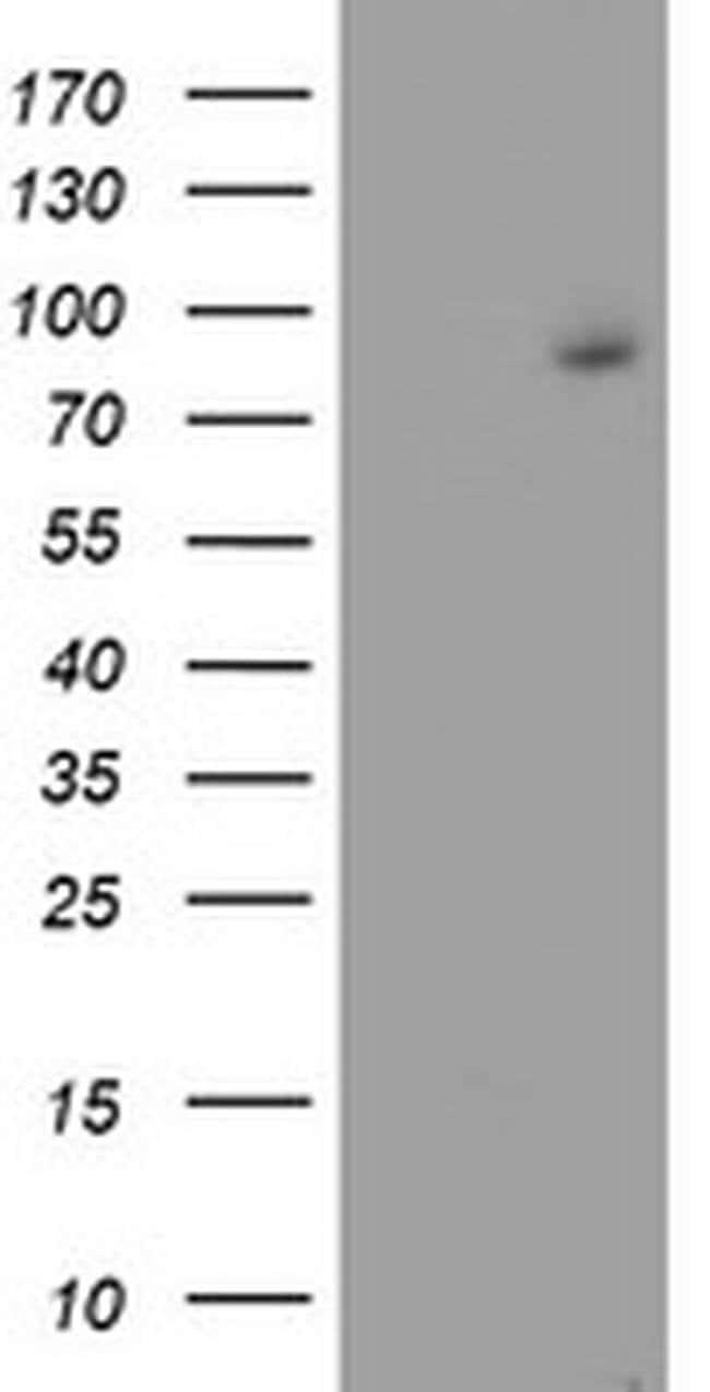 FBXO21 Mouse anti-Human, Clone: OTI5F11, liquid, TrueMAB  100 µL;