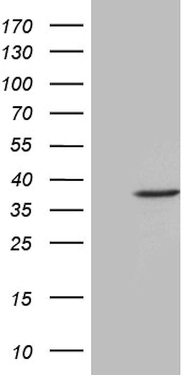 FBXO6 Mouse anti-Human, Clone: OTI2C1, lyophilized, TrueMAB  100 µg;