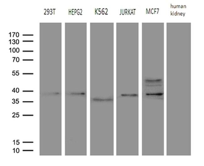 FBXO6 Mouse anti-Human, Clone: OTI6A4, lyophilized, TrueMAB  100 µg;