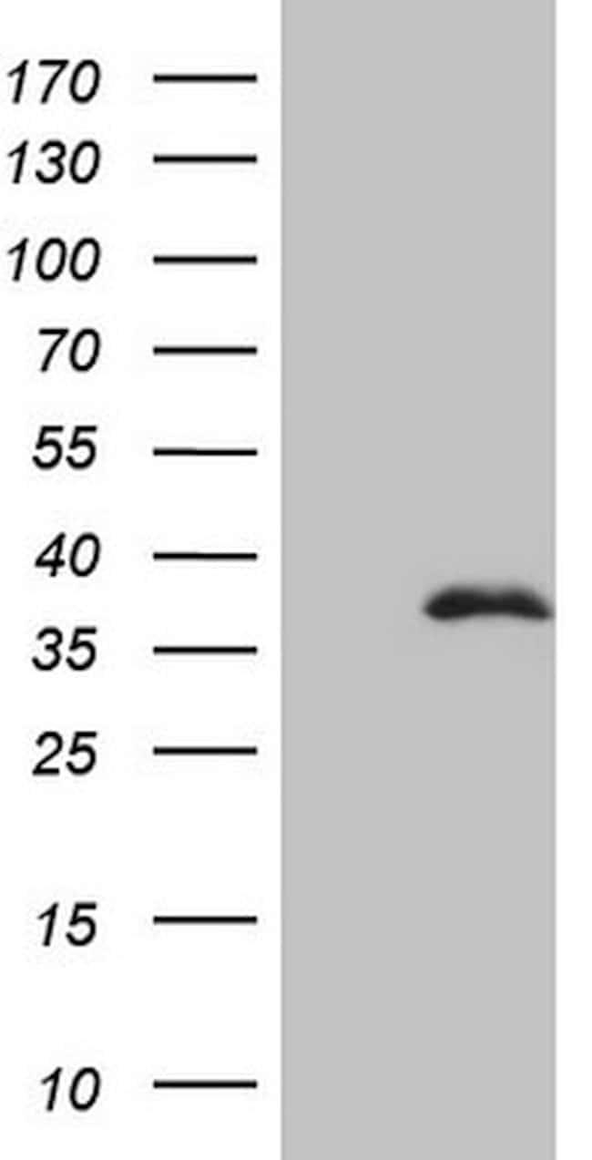 FBXO8 Mouse anti-Human, Clone: OTI7E12, lyophilized, TrueMAB  100 µg;