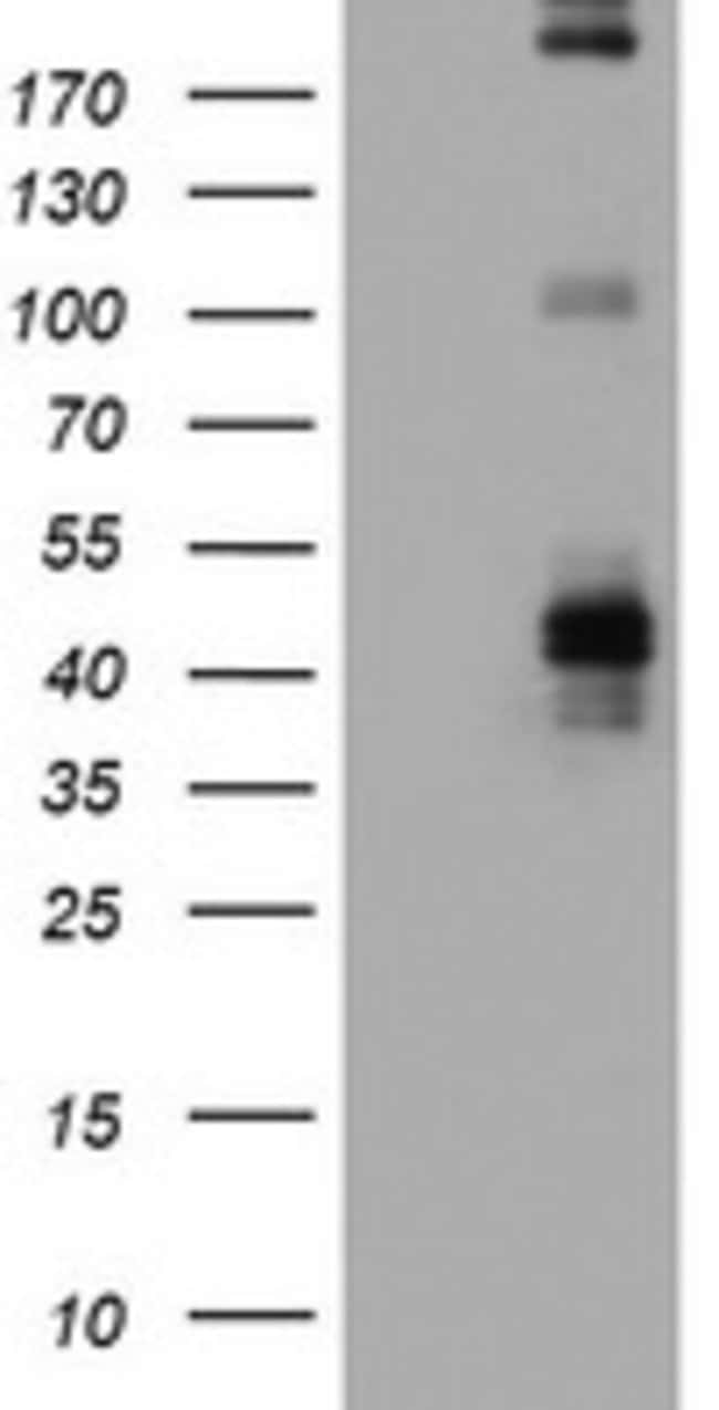 FCER2 Mouse anti-Human, Clone: OTI9B6, lyophilized, TrueMAB  100 µg;