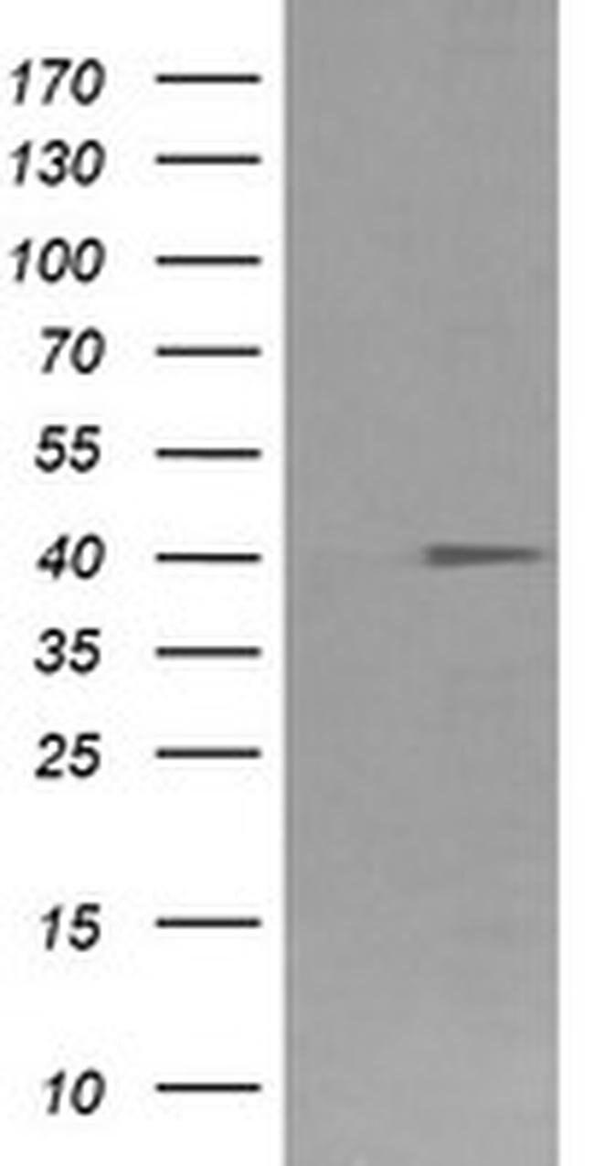 FCGR1A Mouse anti-Human, Clone: OTI3D3, liquid, TrueMAB  30 µL; Unconjugated