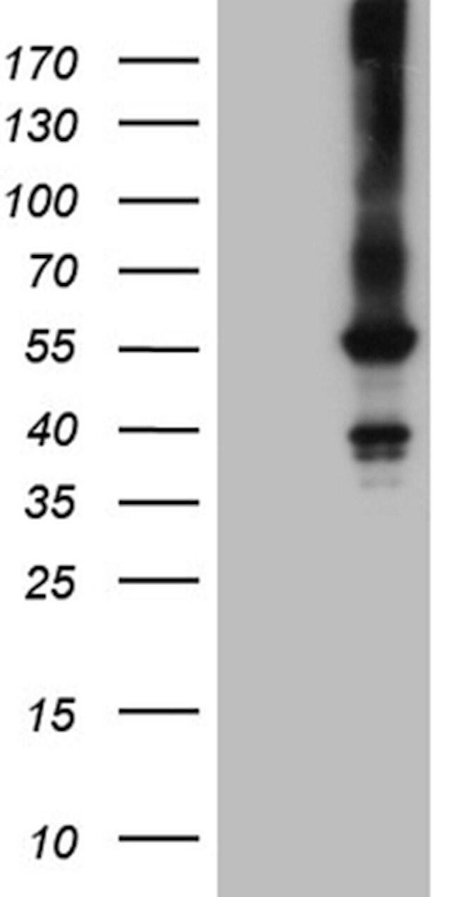 FCRLB Mouse anti-Human, Clone: OTI5H5, lyophilized, TrueMAB  100 µg;