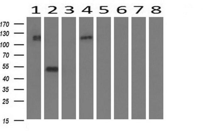 FGFR2 Mouse anti-Human, Clone: OTI1D3, liquid, TrueMAB  100 µL; Unconjugated