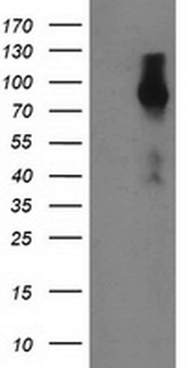 FGFR2 Mouse anti-Human, Clone: OTI1A11, liquid, TrueMAB  100 µL; Unconjugated