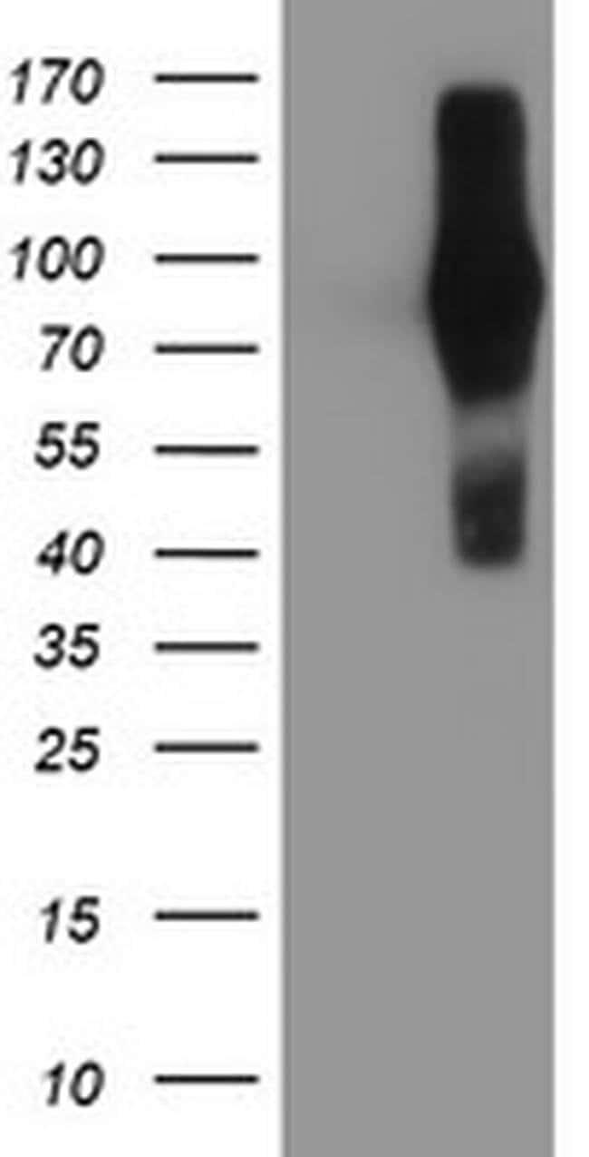FGFR2 Mouse anti-Human, Clone: OTI3F8, liquid, TrueMAB  100 µL; Unconjugated