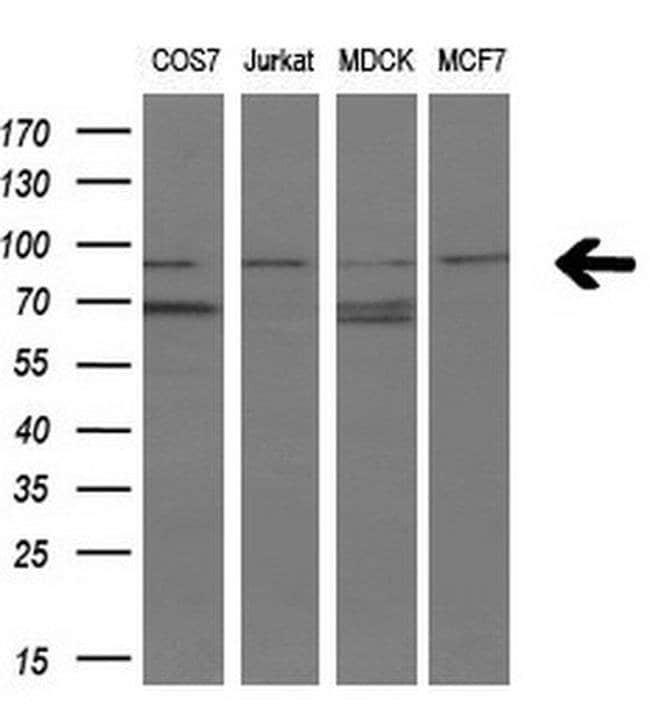 FGFR2 Mouse anti-Human, Clone: OTI5F7, liquid, TrueMAB  30 µL; Unconjugated