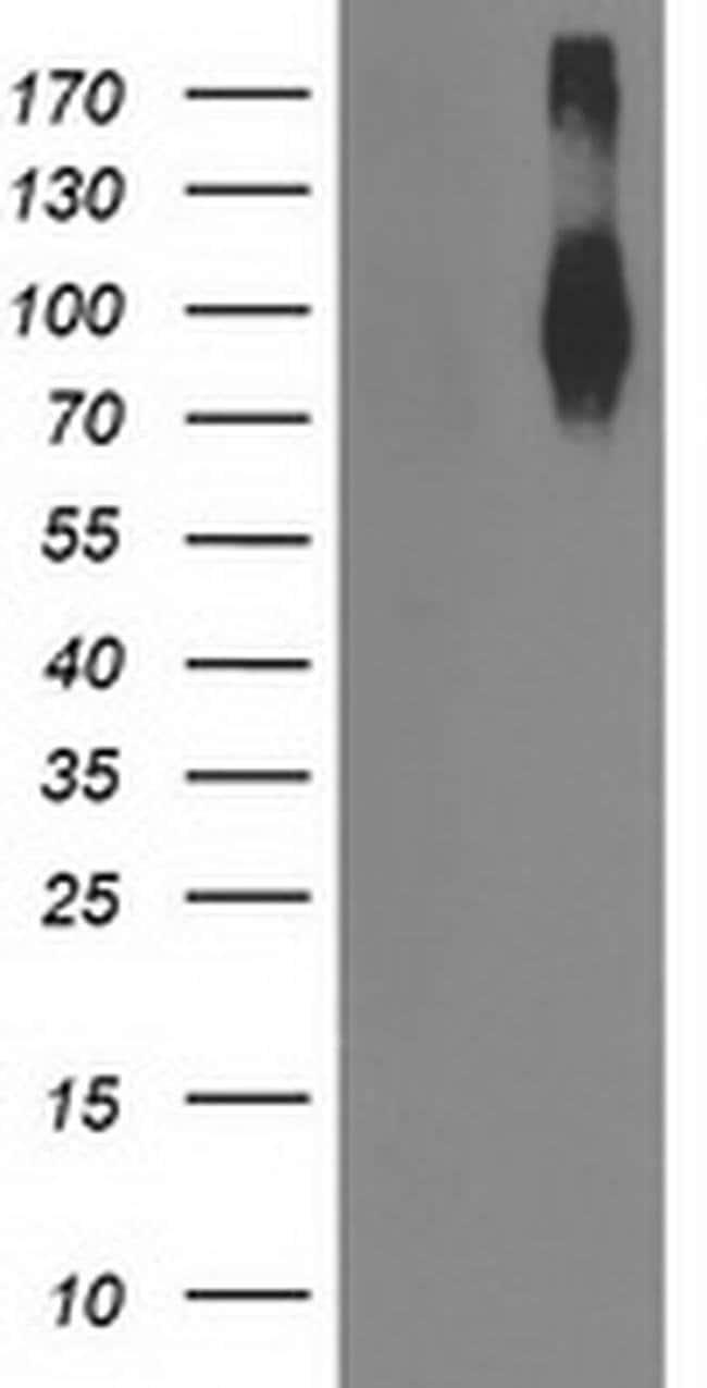 FGFR2 Mouse anti-Human, Clone: OTI2D1, liquid, TrueMAB  100 µL; Unconjugated