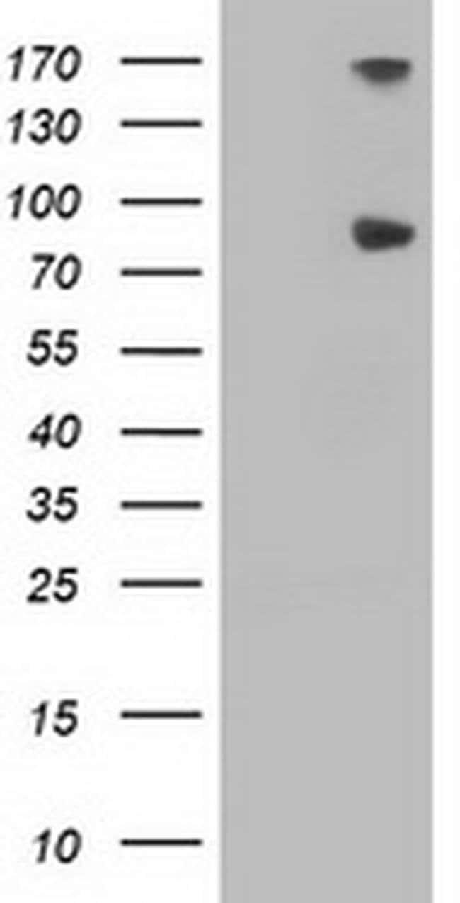 FGFR2 Mouse anti-Human, Clone: OTI3B3, liquid, TrueMAB  100 µL; Unconjugated
