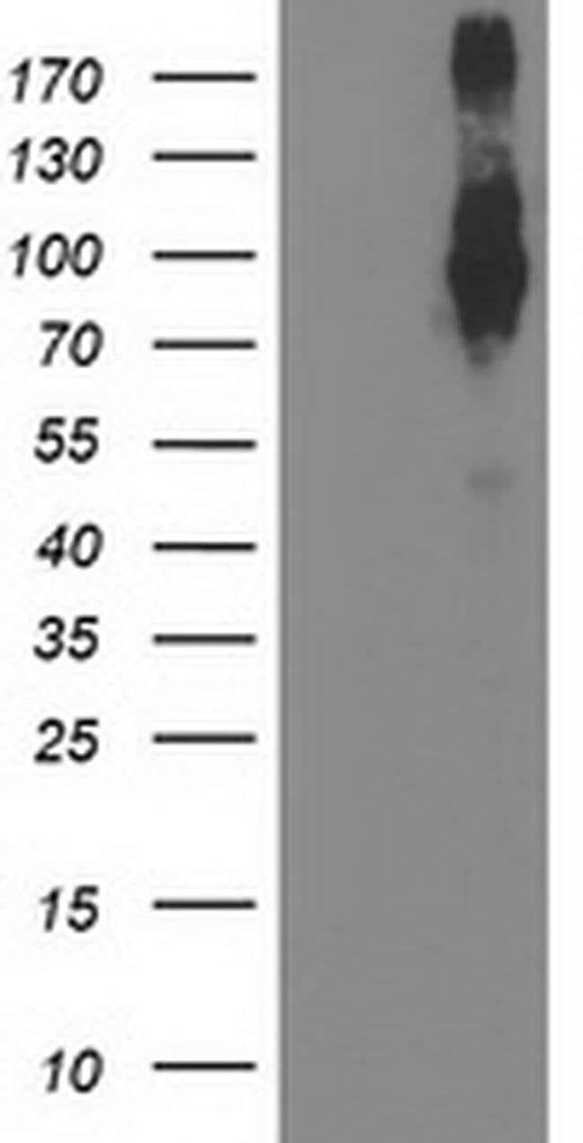 FGFR2 Mouse anti-Human, Clone: OTI1H5, liquid, TrueMAB  100 µL; Unconjugated