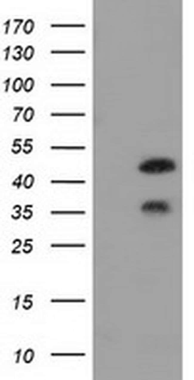 FKBPL Mouse anti-Human, Clone: OTI2D8, liquid, TrueMAB  100 µL; Unconjugated