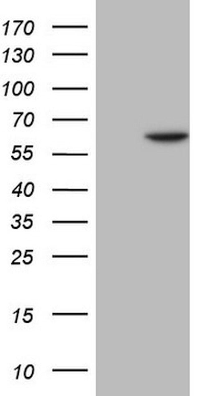 FLT1 Mouse anti-Human, Clone: OTI8G6, lyophilized, TrueMAB  100 µg;