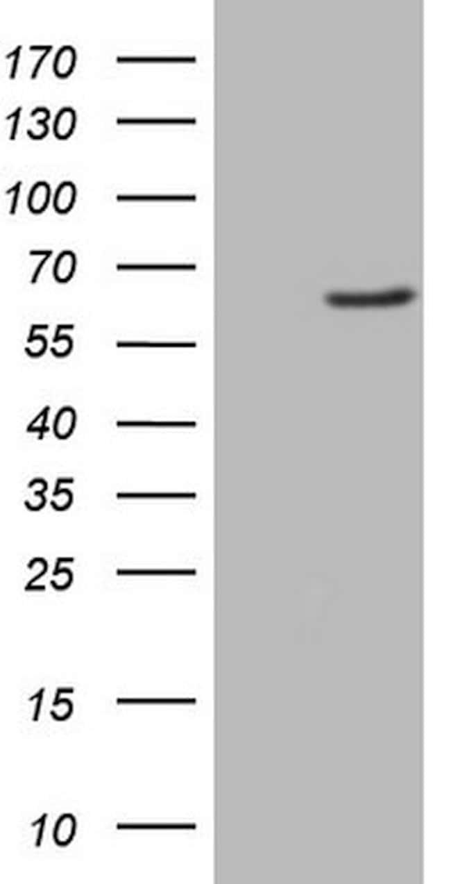 FMO3 Mouse anti-Human, Clone: OTI3H1, lyophilized, TrueMAB  100 µg;