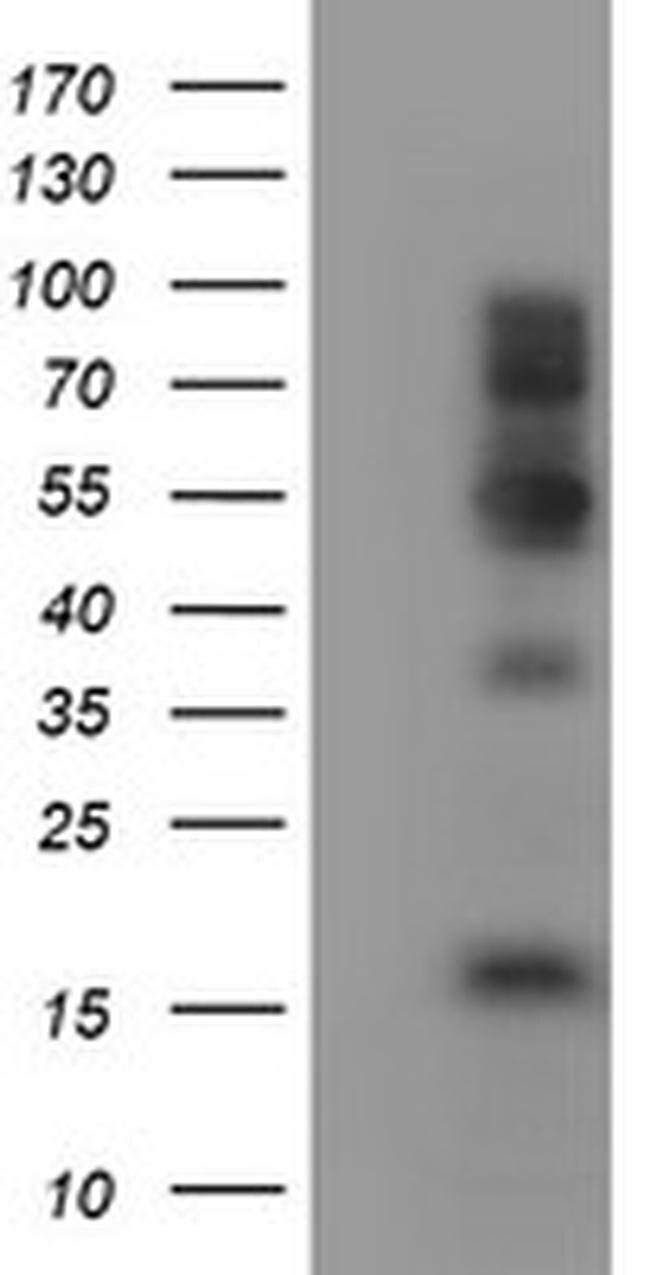 FMR1 Mouse anti-Human, Clone: OTI1H9, liquid, TrueMAB  100 µL; Unconjugated