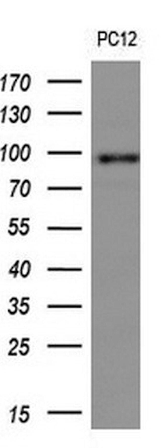 FOLH1 Mouse anti-Human, Clone: OTI5A9, liquid, TrueMAB  100 µL; Unconjugated