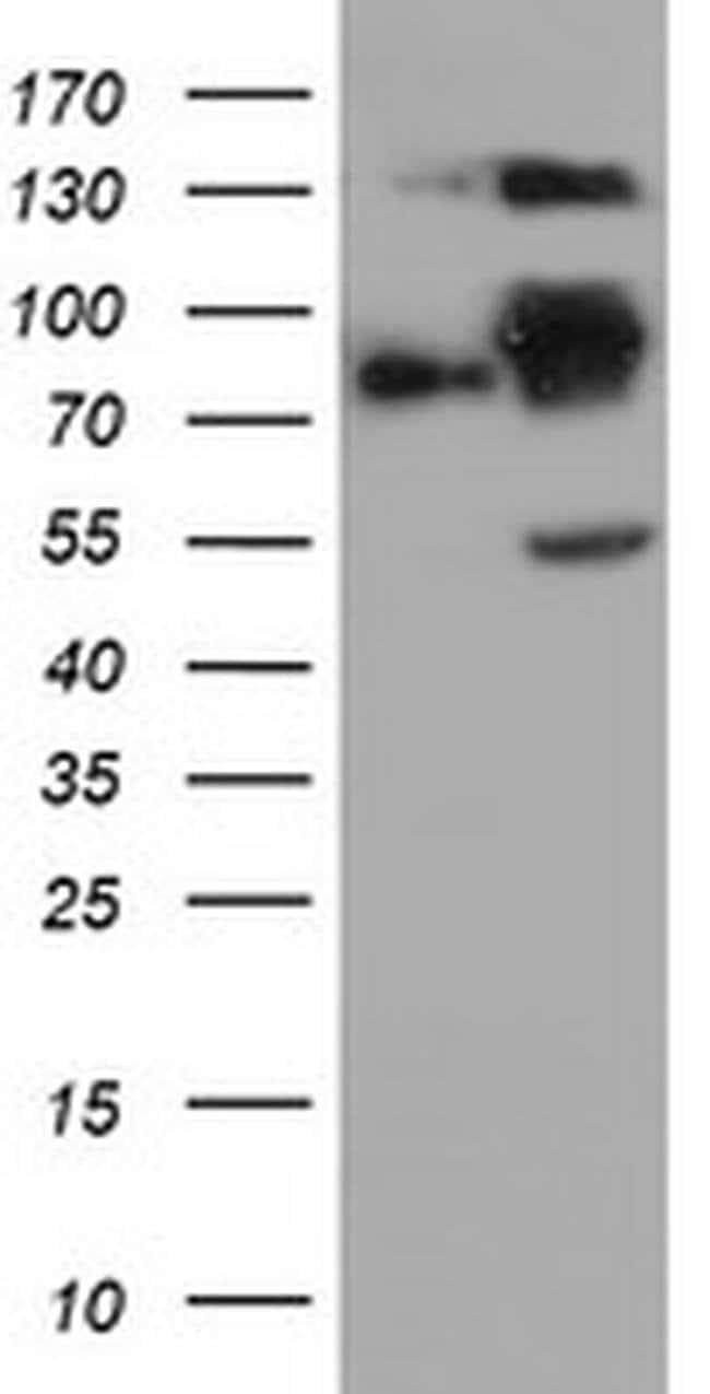 FOLH1 Mouse anti-Human, Mouse, Clone: OTI3E8, liquid, TrueMAB  100 µL;