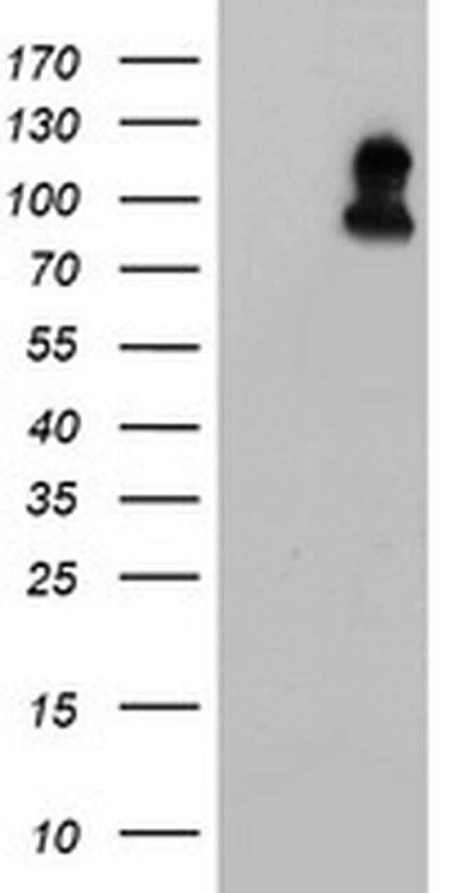 FOLH1 Mouse anti-Human, Clone: OTI5C4, liquid, TrueMAB  100 µL; Unconjugated