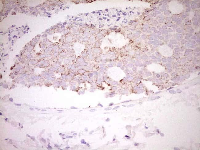 FOS Mouse anti-Human, Clone: OTI7D6, lyophilized, TrueMAB  100 µg;